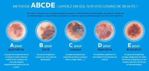 abcde-cancer-peau